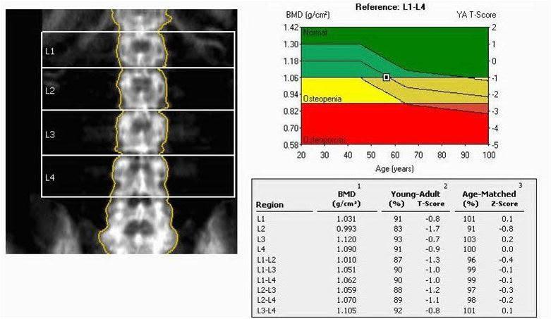 Κατερίνη   Δωρεάν προληπτικοί έλεγχοι οστεοπόρωσης